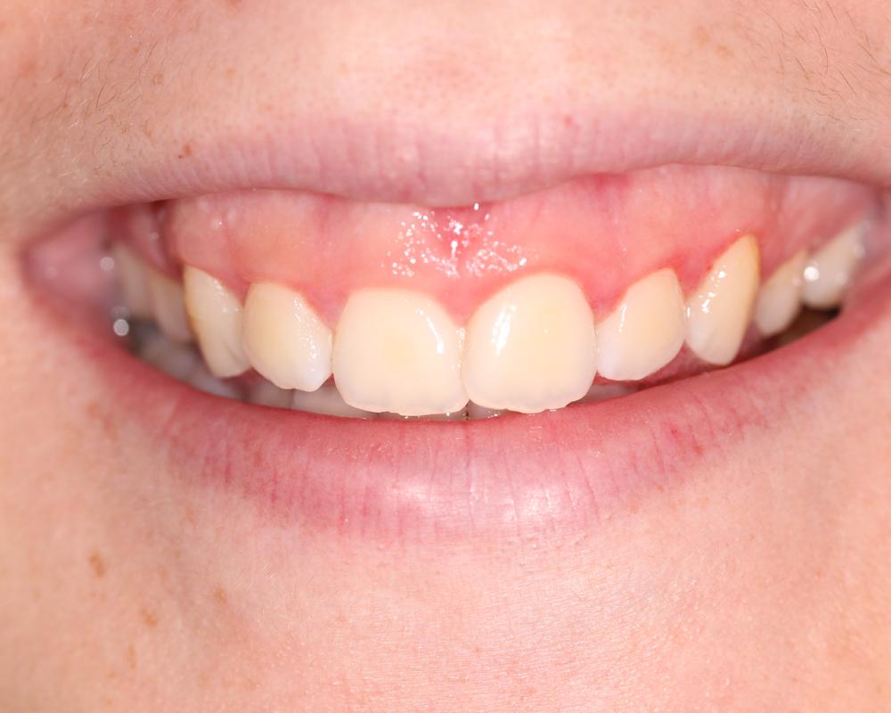 Gummy Smile Img1