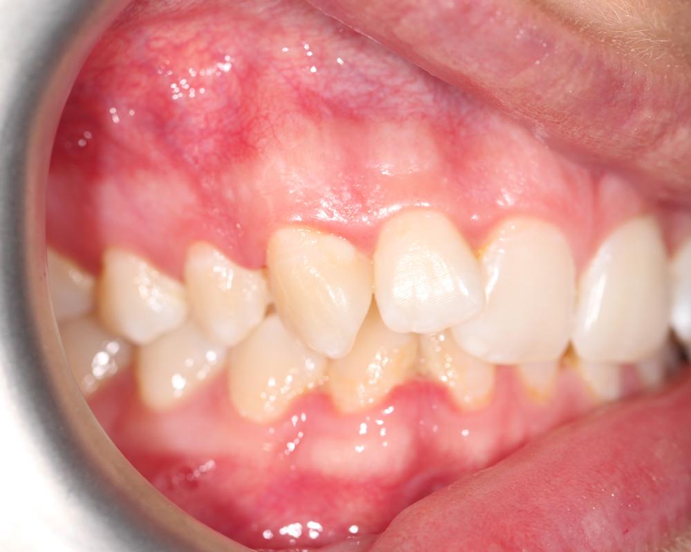 Ortho Img36