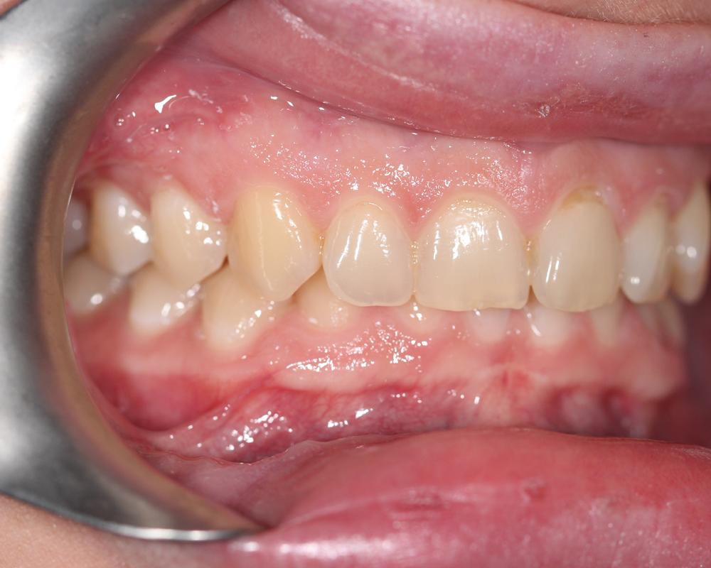 Ortho Img41