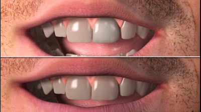 SAME DAY CROWNS AND VENEERS