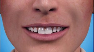 WHITENING AND STAIN REMOVAL