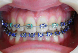 cheap_braces