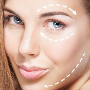 facial-lines