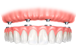 implant_retained_dentures