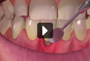 sensityvity_treatment_video
