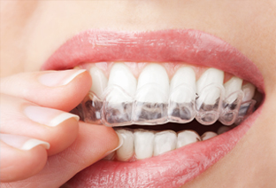 8 Reasons to Choose the Clear Alternative to Traditional Metal Braces!