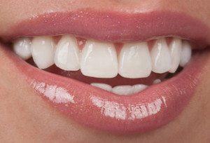 treatment_veneer