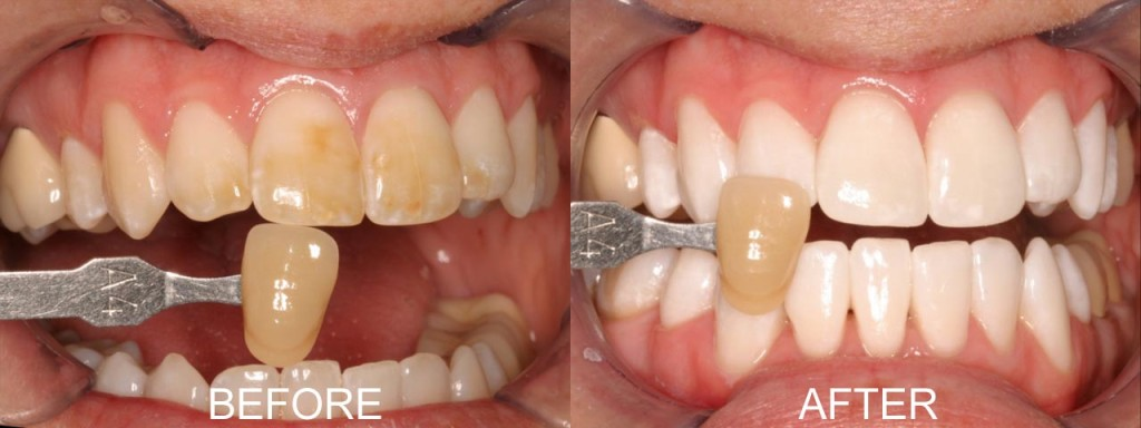 Tooth Whitening Colchester Before and After