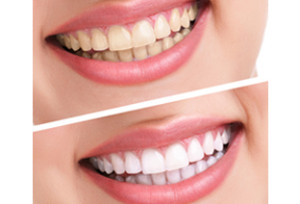 whitening_stain_removal