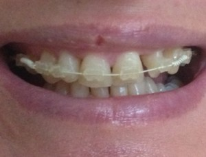 My-6-Month-Smile-Experience