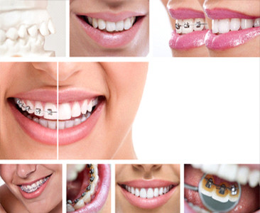 Teeth Straightening in Colchester– all your questions answered