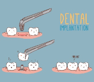 Dental Implants – Are they for you?