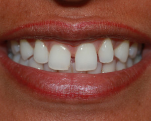 veneers1_before